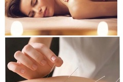Pay Direct In Person: Acupuncture & acupressure (TuiNa)